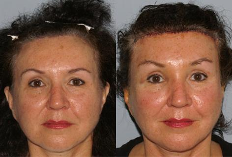 Browlift before and after photos in San Francisco, CA, Patient 13104