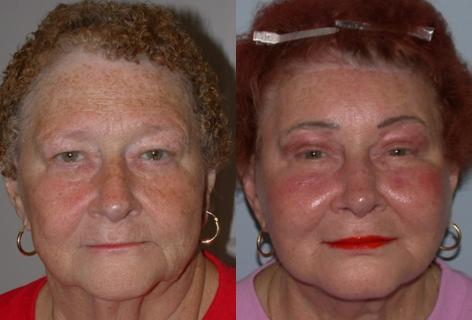 Browlift before and after photos in San Francisco, CA, Patient 13111
