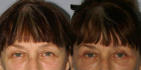 Browlift before and after photos in San Francisco, CA, Patient 13132