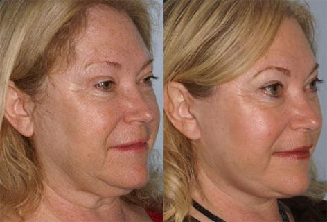 Cheek Implant before and after photos in San Francisco, CA, Patient 13135