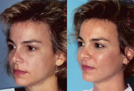 Cheek Implant before and after photos in San Francisco, CA, Patient 13142