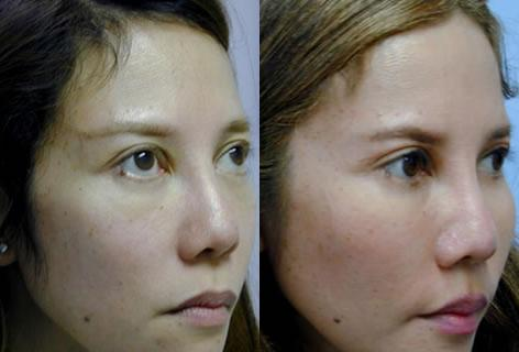 Cheek Implant before and after photos in San Francisco, CA, Patient 13152
