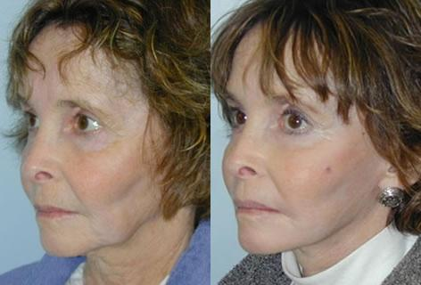 Cheek Implant before and after photos in San Francisco, CA, Patient 13158