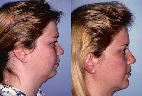 Chin Implant before and after photos in San Francisco, CA, Patient 13165