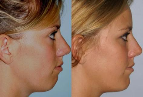 Chin Implant before and after photos in San Francisco, CA, Patient 13170
