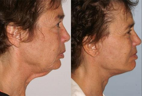 Chin Implant before and after photos in San Francisco, CA, Patient 13177