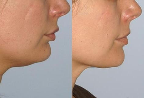 Chin Implant before and after photos in San Francisco, CA, Patient 13180