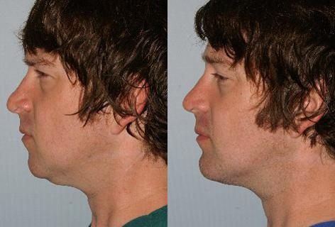 Chin Implant before and after photos in San Francisco, CA, Patient 13184