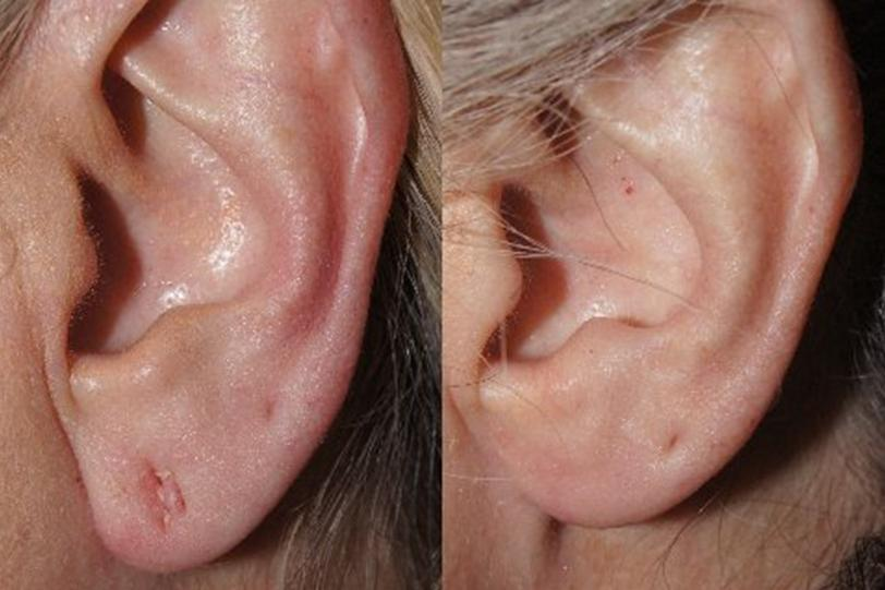 Earlobe Repair before and after photos in San Francisco, CA, Patient 13216
