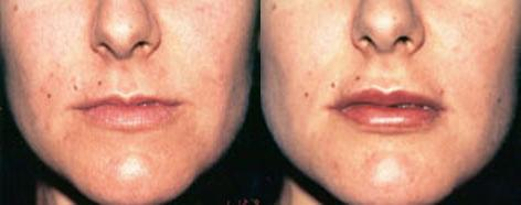 Lips before and after photos in San Francisco, CA, Patient 13256