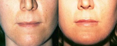 Lips before and after photos in San Francisco, CA, Lip Augmentation in San Francisco, CA