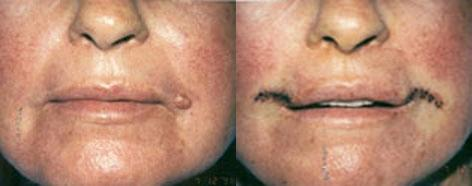 Lips before and after photos in San Francisco, CA, Patient 13262