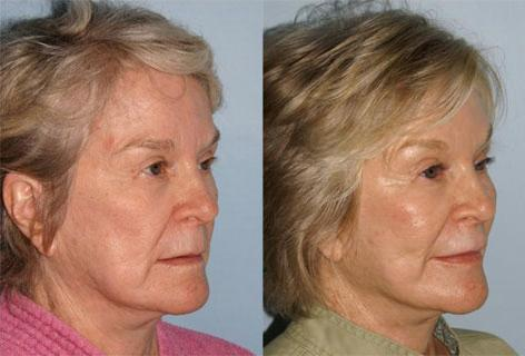 Lips before and after photos in San Francisco, CA, Patient 13270