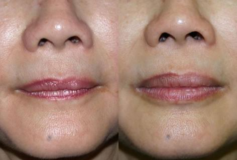 Lips before and after photos in San Francisco, CA, Patient 13277