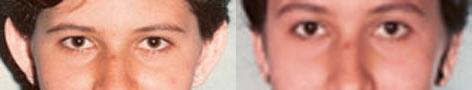 Otoplasty before and after photos in San Francisco, CA, Patient 13307