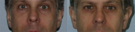 Otoplasty before and after photos in San Francisco, CA, Patient 13314