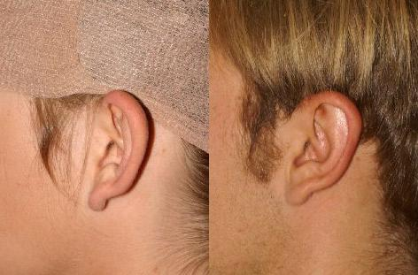 Otoplasty before and after photos in San Francisco, CA, Otoplasty in San Francisco, CA