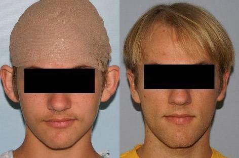 Otoplasty before and after photos in San Francisco, CA, Patient 13317