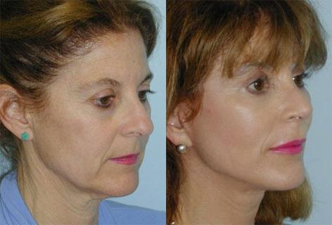 Rhinoplasty before and after photos in San Francisco, CA, Patient 13326