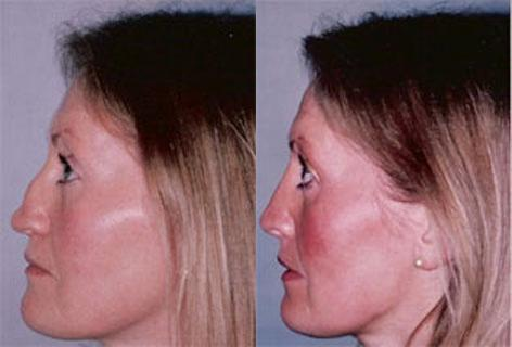Rhinoplasty before and after photos in San Francisco, CA, Patient 13333
