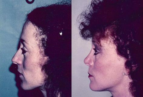 Rhinoplasty before and after photos in San Francisco, CA, Patient 13338