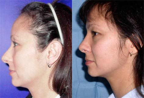 Rhinoplasty before and after photos in San Francisco, CA, Patient 13343