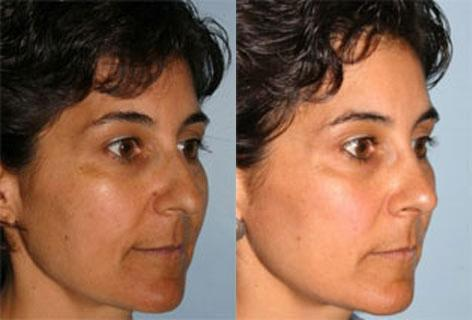 Rhinoplasty before and after photos in San Francisco, CA, Patient 13355