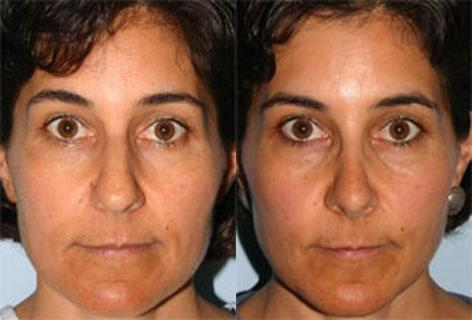 Rhinoplasty before and after photos in San Francisco, CA, Rhinoplasty in San Francisco, CA
