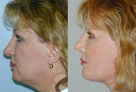 Rhinoplasty before and after photos in San Francisco, CA, Patient 13362