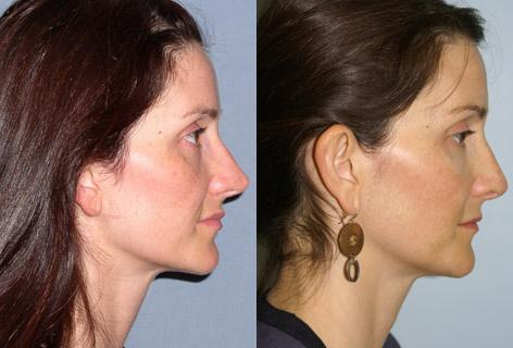 Rhinoplasty before and after photos in San Francisco, CA, Patient 13369