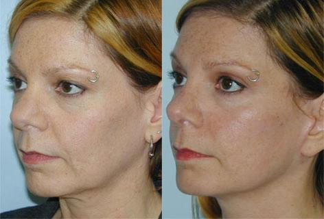 Rhinoplasty before and after photos in San Francisco, CA, Patient 13376