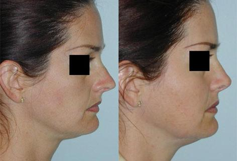 Rhinoplasty before and after photos in San Francisco, CA, Patient 13383