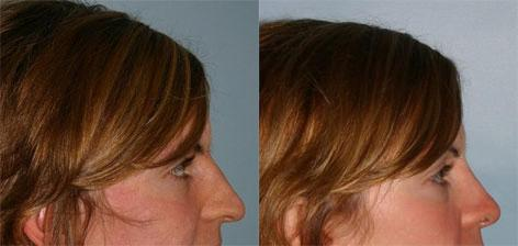 Rhinoplasty before and after photos in San Francisco, CA, Patient 13388
