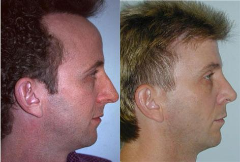 Rhinoplasty before and after photos in San Francisco, CA, Patient 13397