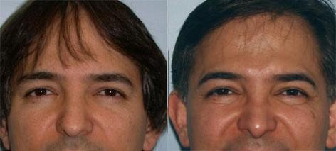 Rhinoplasty before and after photos in San Francisco, CA, Patient 13402