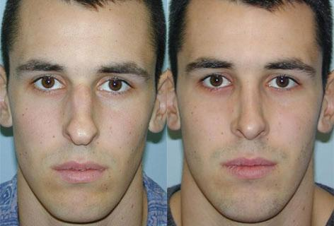 Rhinoplasty before and after photos in San Francisco, CA, Patient 13407