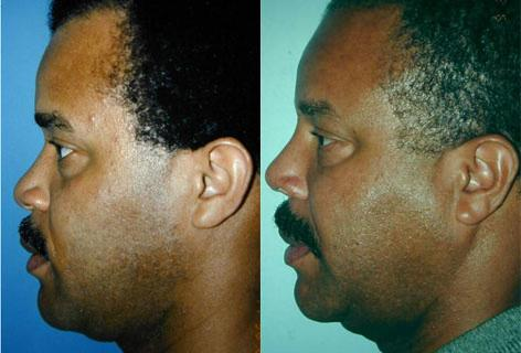 Rhinoplasty before and after photos in San Francisco, CA, Patient 13412
