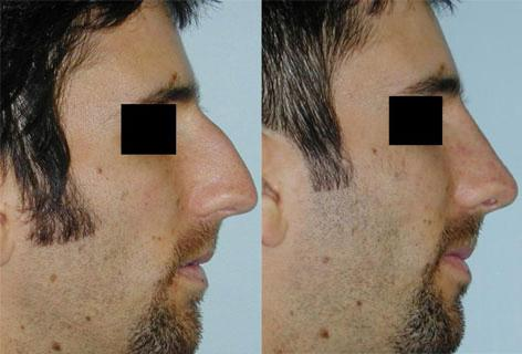 Rhinoplasty before and after photos in San Francisco, CA, Patient 13417
