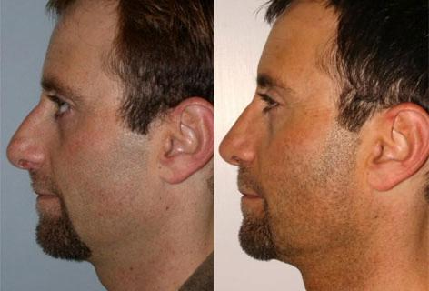 Rhinoplasty before and after photos in San Francisco, CA, Patient 13420