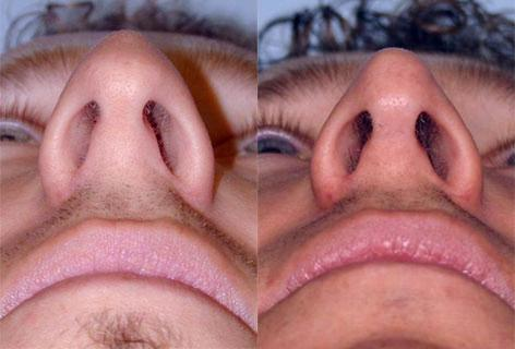 Rhinoplasty before and after photos in San Francisco, CA, Patient 13427