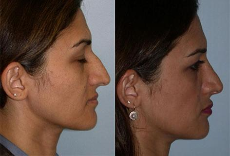 Rhinoplasty before and after photos in San Francisco, CA, Patient 13436