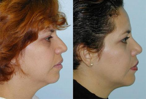 Rhinoplasty before and after photos in San Francisco, CA, Patient 13441