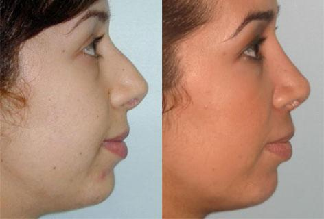 Rhinoplasty before and after photos in San Francisco, CA, Patient 13446
