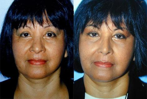 Rhinoplasty before and after photos in San Francisco, CA, Patient 13451