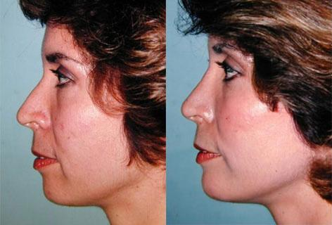 Rhinoplasty before and after photos in San Francisco, CA, Patient 13456