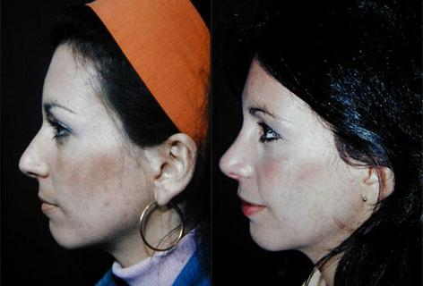 Rhinoplasty before and after photos in San Francisco, CA, Patient 13461