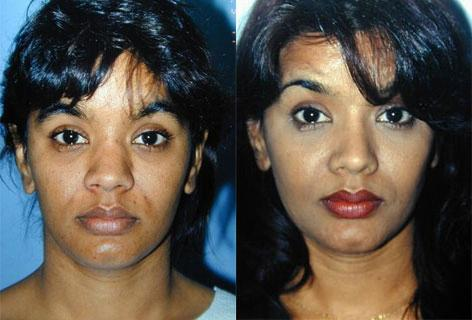 Rhinoplasty before and after photos in San Francisco, CA, Patient 13466