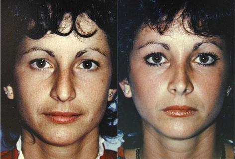 Rhinoplasty before and after photos in San Francisco, CA, Patient 13471
