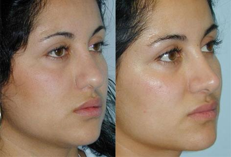 Rhinoplasty before and after photos in San Francisco, CA, Patient 13476
