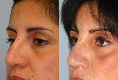 Rhinoplasty before and after photos in San Francisco, CA, Patient 13483